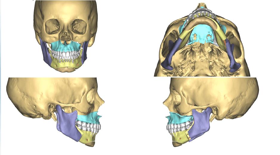 chirurgie-maxillo-faciale